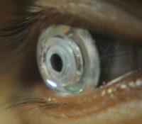 Científicos desarrollan unas lentillas con zoom