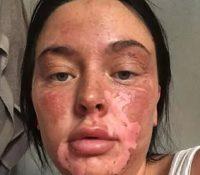 Una influencer británica sufrió severas heridas faciales después de un intento de cocción en el microondas.